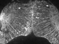 Cum se formeaza gandurile intr-un creier. Experiment filmat in premiera. VIDEO