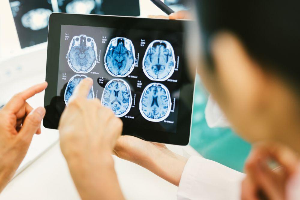 Descoperire ingrijoratoare a cercetatorilor. Ce se intampla in creierul nostru dupa varsta de 13 ani
