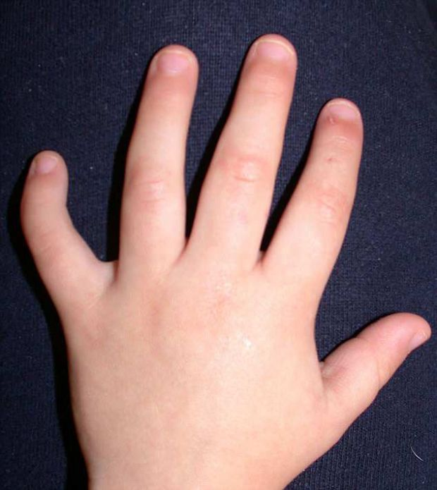 Ce inseamna daca ai degetul aratator mai scurt ca inelarul? Cercetatorii au descoperit un detaliu surprinzator